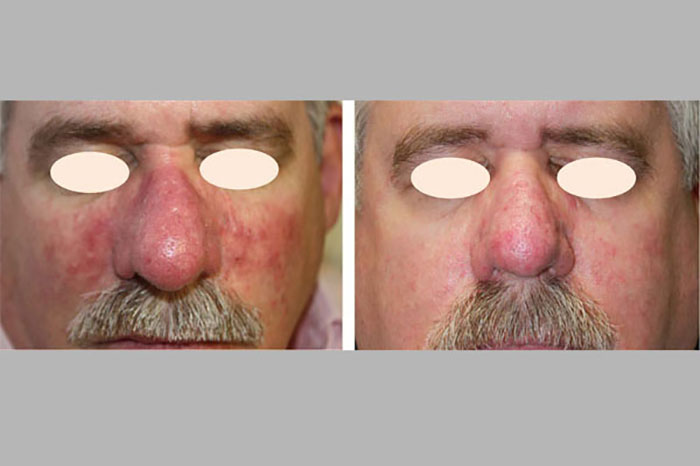 facial veins
