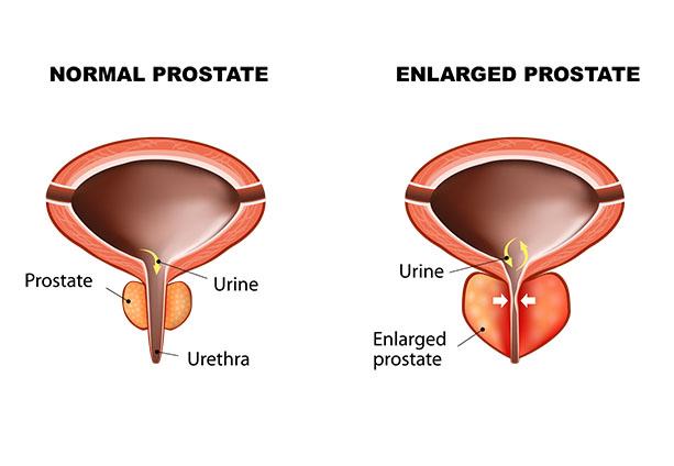 prostate artery embolization