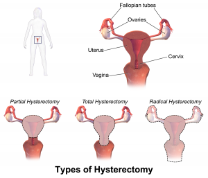 Many women will undergo a hysterectomy to treat uterine fibroids. And although doctors encourage women to use hysterectomy only as a last resort a hysterectomy is still a very popular surgical option for the treatment of uterine fibroids.